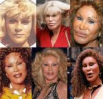 Jocelyn Wildenstein B & A.img_assist_custom